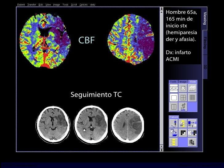 CBF Seguimiento TC Hombre 65a, 165 min de inicio stx (hemiparesia der y afasia). Dx: infarto ACMI INCICh/CT Scanner del Su...
