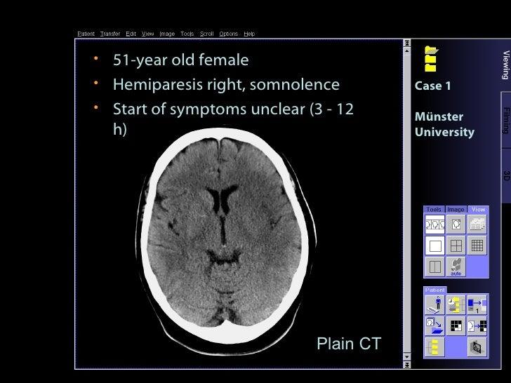 <ul><li>51-year old female </li></ul><ul><li>Hemiparesis right, somnolence </li></ul><ul><li>Start of symptoms unclear (3 ...