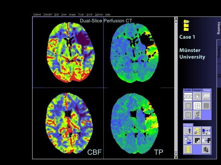 CBF TP Case 1 Münster University Dual-Slice Perfusion CT