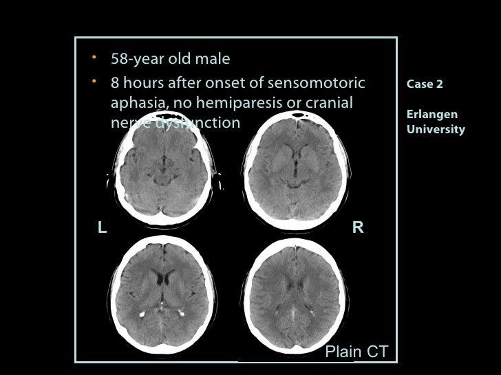 Case 2 Erlangen University <ul><li>58-year old male </li></ul><ul><li>8 hours after onset of sensomotoric aphasia, no hemi...