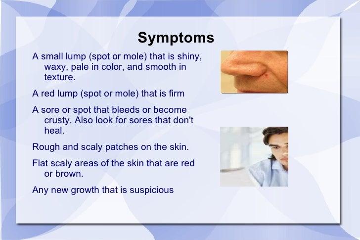 rash under armpit