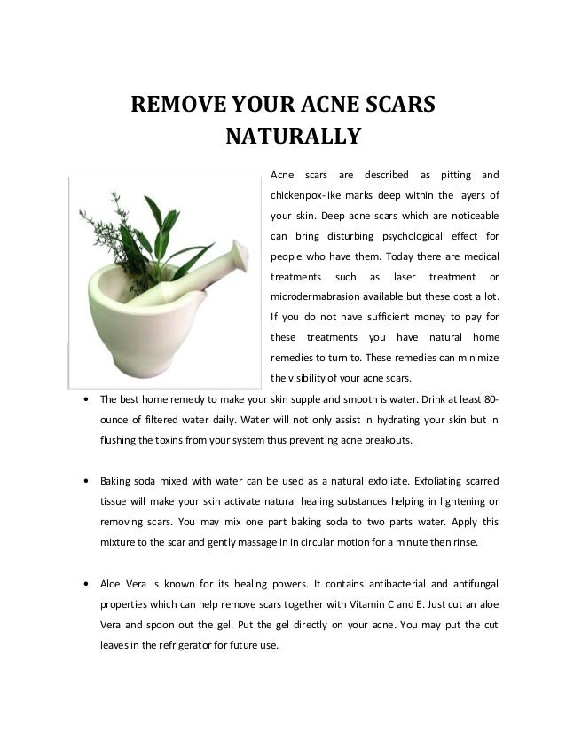Remove Your Acne Scars Naturally