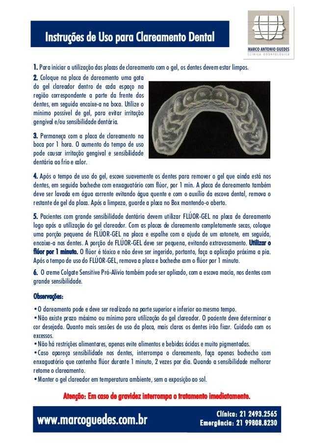 Uso De Clareamento Dental