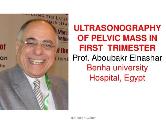 ULTRASONOGRAPHY OF PELVIC MASS IN FIRST TRIMESTER Prof. Aboubakr Elnashar Benha university Hospital, Egypt ABOUBAKR ELNASH...