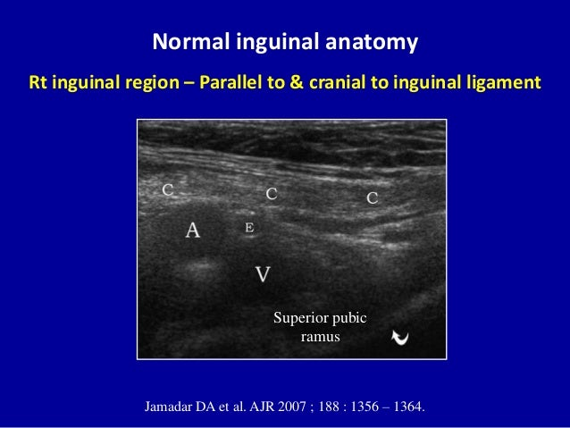 Ultrasound Pictures Of Inguinal Hernia 113