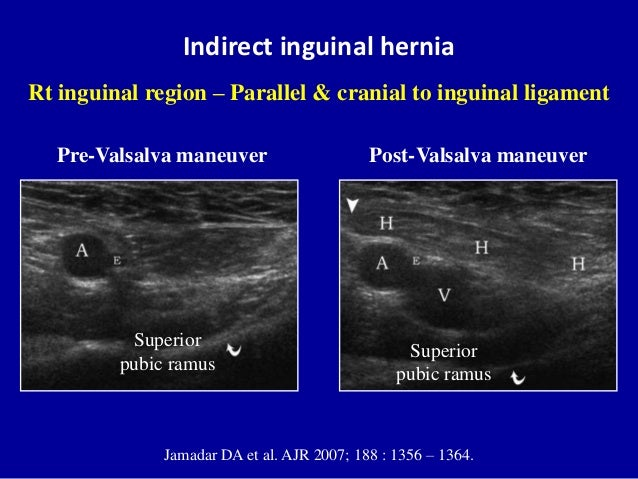 how to detect a groin hernia