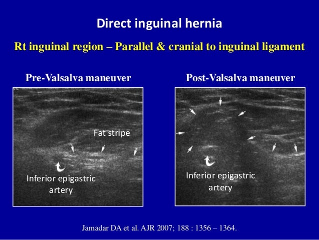 Ultrasound Pictures Of Inguinal Hernia 23