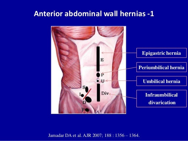 Ultrasound of the abdominal wall hernias