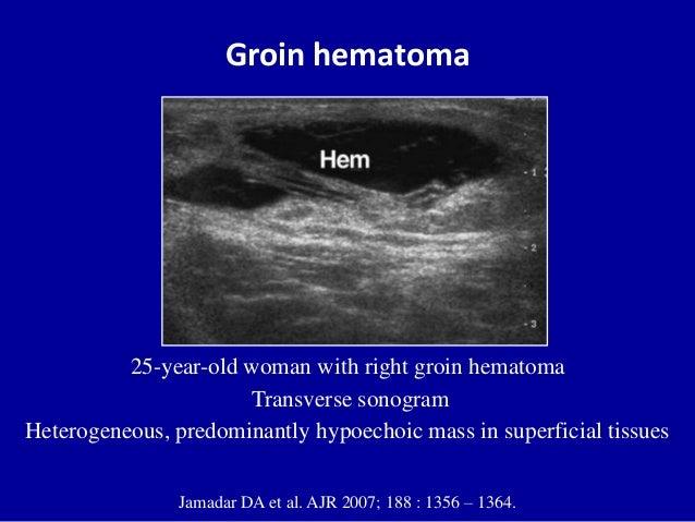 Air02 in addition Pvps Final in addition 2986 likewise Apendicitis Aguda 8857097 further Hernioplastia Precio Cirugia De Hernia Ventral Guadalajara Mexico. on ventral hernia