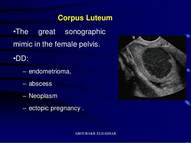 Ultrasonography of the ovary