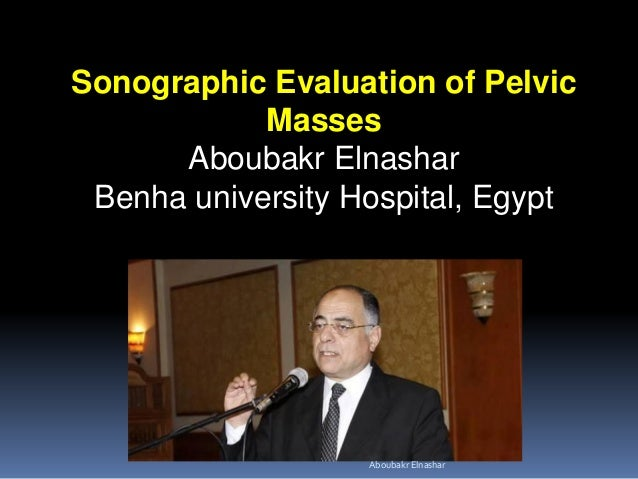 Sonographic Evaluation of Pelvic Masses Aboubakr Elnashar Benha university Hospital, Egypt Aboubakr Elnashar