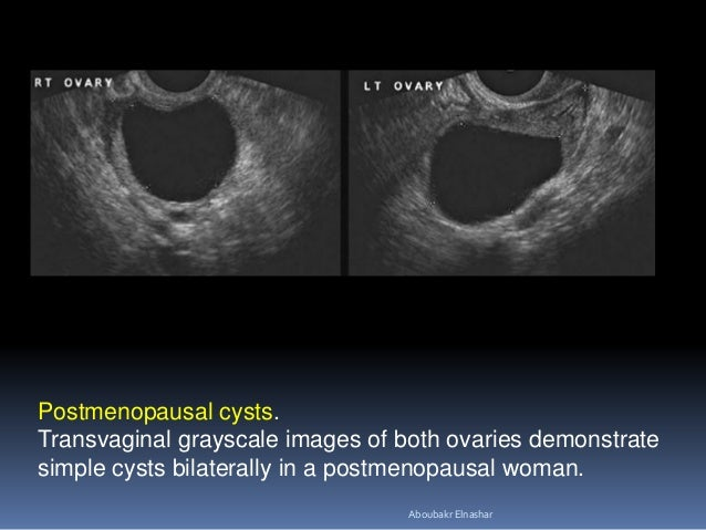 Postmenopausal cysts. Transvaginal grayscale images of both ovaries demonstrate simple cysts bilaterally in a postmenopaus...