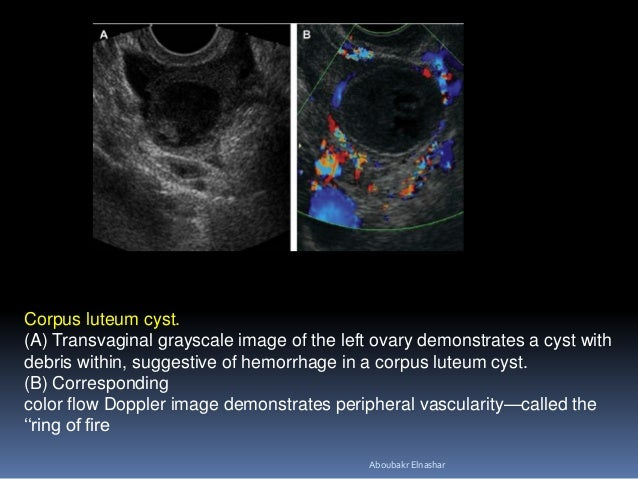 Corpus luteum cyst. (A) Transvaginal grayscale image of the left ovary demonstrates a cyst with debris within, suggestive ...