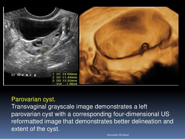 Parovarian cyst. Transvaginal grayscale image demonstrates a left parovarian cyst with a corresponding four-dimensional US...