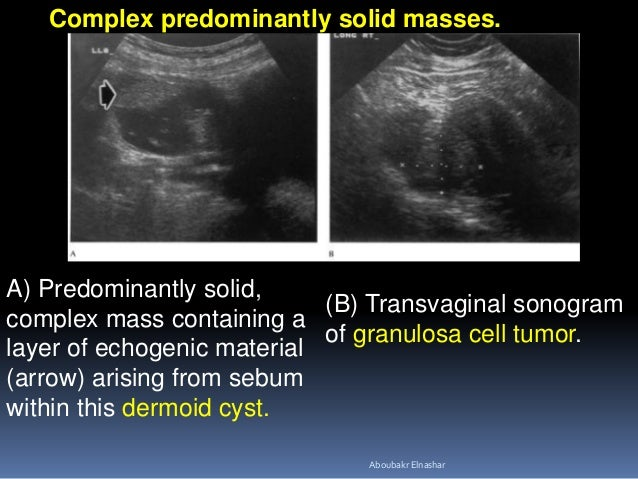 A) Predominantly solid, complex mass containing a layer of echogenic material (arrow) arising from sebum within this dermo...