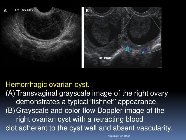 Hemorrhagic ovarian cyst. (A)Transvaginal grayscale image of the right ovary demonstrates a typical''fishnet'' appearance....