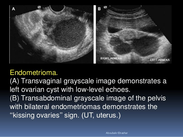 Endometrioma. (A) Transvaginal grayscale image demonstrates a left ovarian cyst with low-level echoes. (B) Transabdominal ...