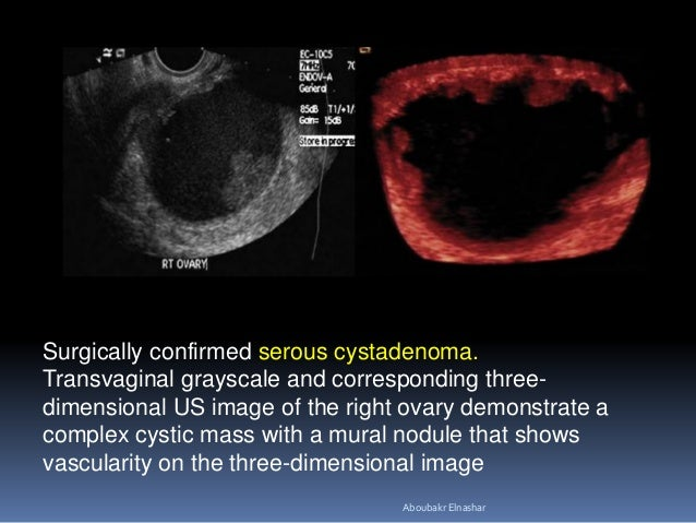 Surgically confirmed serous cystadenoma. Transvaginal grayscale and corresponding three- dimensional US image of the right...