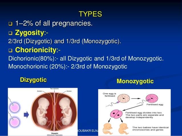 Ultrasonography of twin pregnancy SOGC GUIDELINE