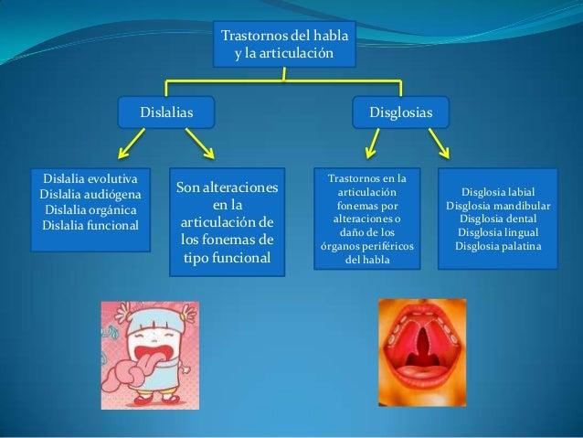 Trastornos del habla y la articulación Dislalias Disglosias Son alteraciones en la articulación de los fonemas de tipo fun...
