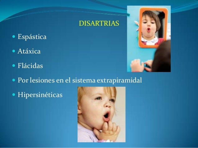 DISARTRIAS  Espástica  Atáxica  Flácidas  Por lesiones en el sistema extrapiramidal  Hipersinéticas