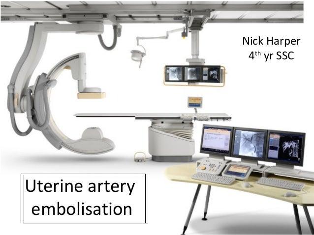 Uterine artery embolisation Nick Harper 4th yr SSC