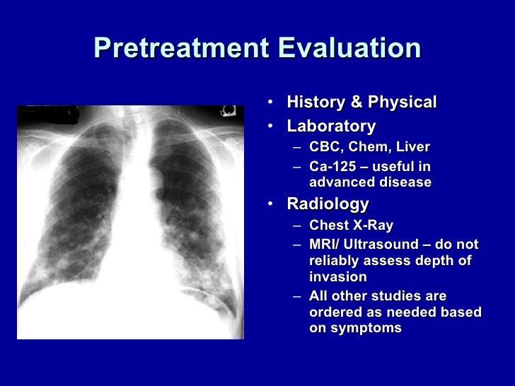 Pretreatment Evaluation <ul><li>History & Physical </li></ul><ul><li>Laboratory </li></ul><ul><ul><li>CBC, Chem, Liver </l...