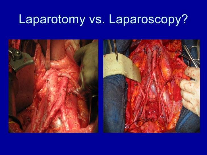 Laparotomy vs. Laparoscopy?