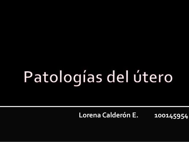 Lorena Calderón E. 100145954