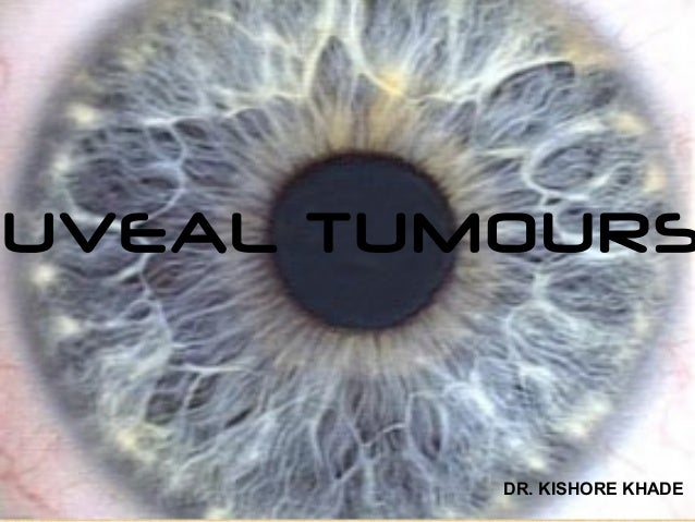 UVEAL TUMOURS         DR. KISHORE KHADE