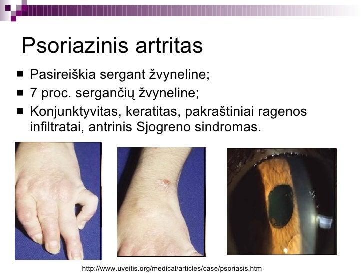 Psoriazinis artritas ir menopauze