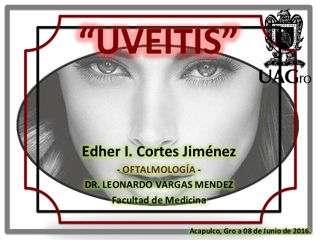"""UVEITIS""      Edher  I.  Cortes  Jiménez   -‐  OFTALMOLOGÍA  -‐     DR.  LEONARDO  VARGAS  ME..."