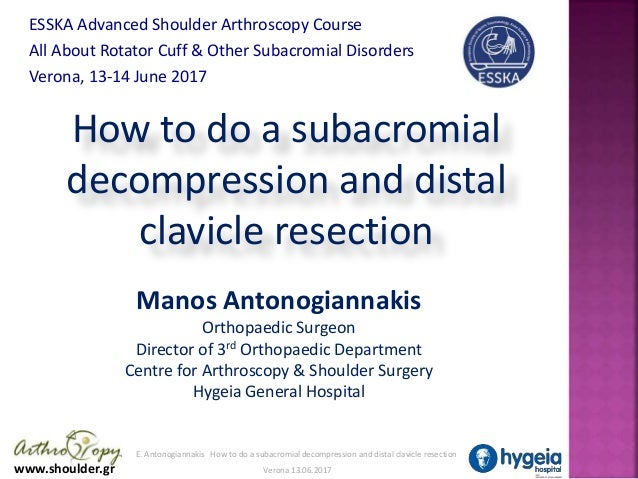 www.shoulder.gr E. Antonogiannakis How to do a subacromial decompression and distal clavicle resection Verona 13.06.2017 H...