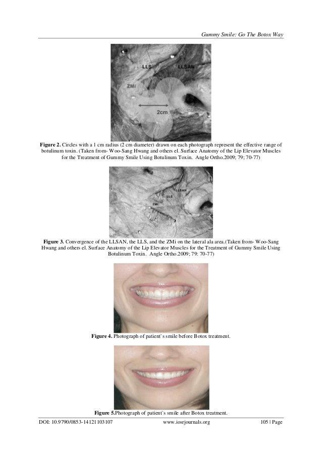 Gummy Smile: Go the Botox Way