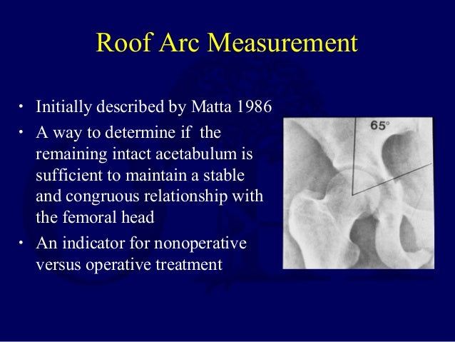 Acetabular Roof Osteophytes Arthritis And Infection