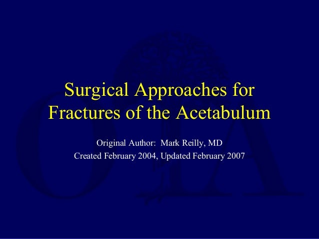 Surgical Approaches for Fractures of the Acetabulum Original Author: Mark Reilly, MD Created February 2004, Updated Februa...