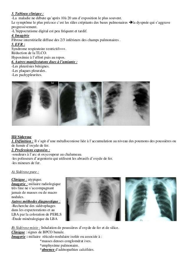 pneumoconioses polycopie