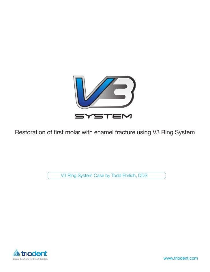 Restoration of first molar with enamel fracture using V3 Ring System                      Griptab Veneer Case by Graeme Mi...