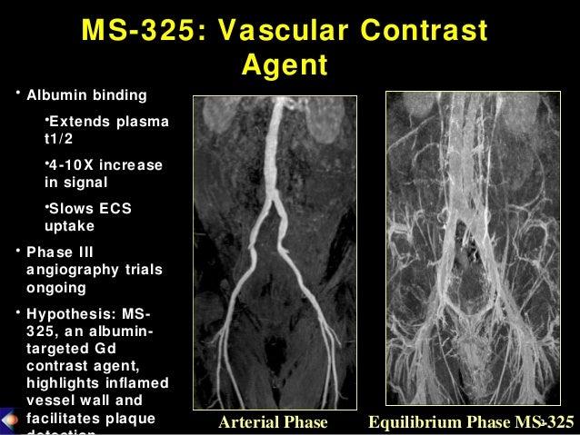 134 mr contrast agents for vulnerable plaque imaging Slide 2