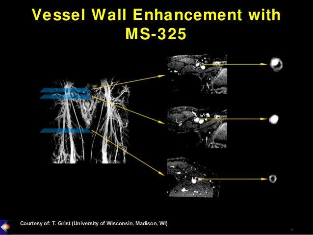 134 mr contrast agents for vulnerable plaque imaging Slide 3