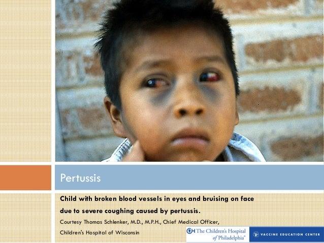 Childhood Disease Images