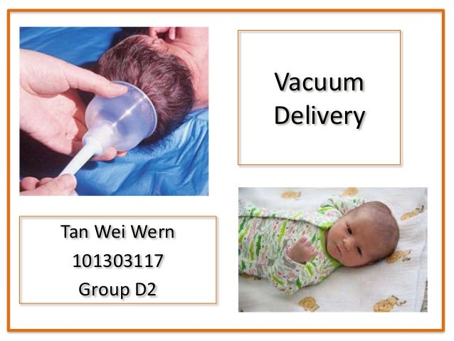 Vacuum Delivery OSCE Vacuum Delivery Complications