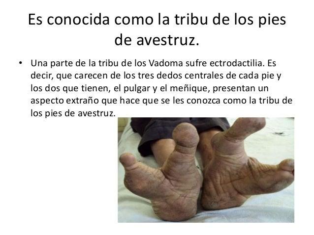 Es conocida como la tribu de los pies de avestruz. • Una parte de la tribu de los Vadoma sufre ectrodactilia. Es decir, qu...