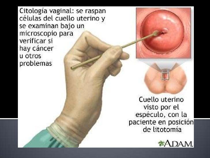 Contemporáneo La Anatomía Del Vagaina Elaboración - Anatomía de Las ...