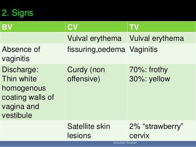 Discharge Vagina Yellow