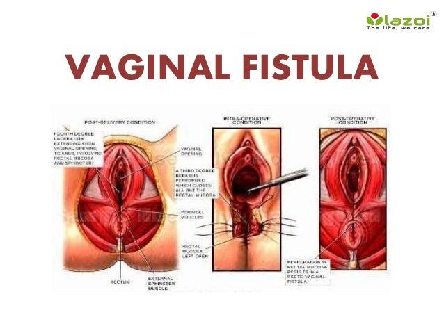 Photos anal fistula symptoms and think
