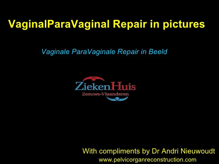 VaginalParaVaginal Repair in pictures With compliments by Dr Andri Nieuwoudt www.pelvicorganreconstruction.com Vaginale Pa...
