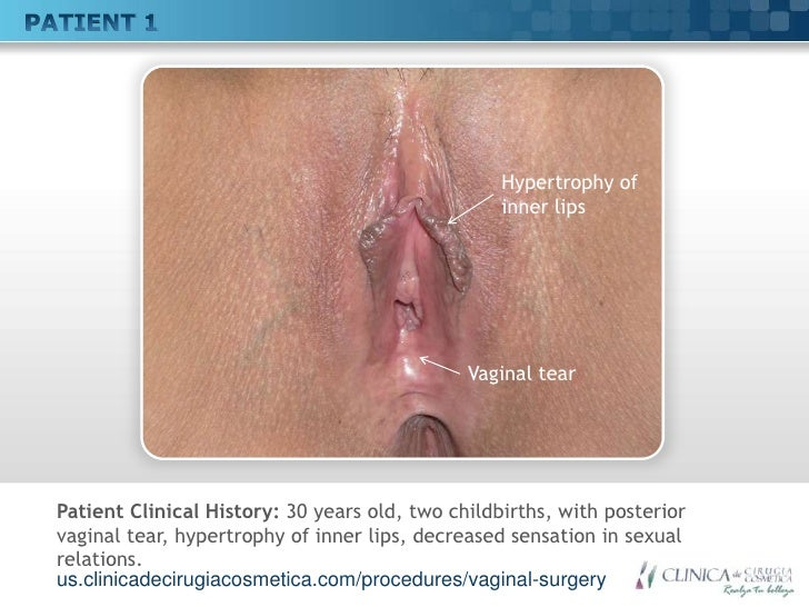 Vaginal tear sex heal