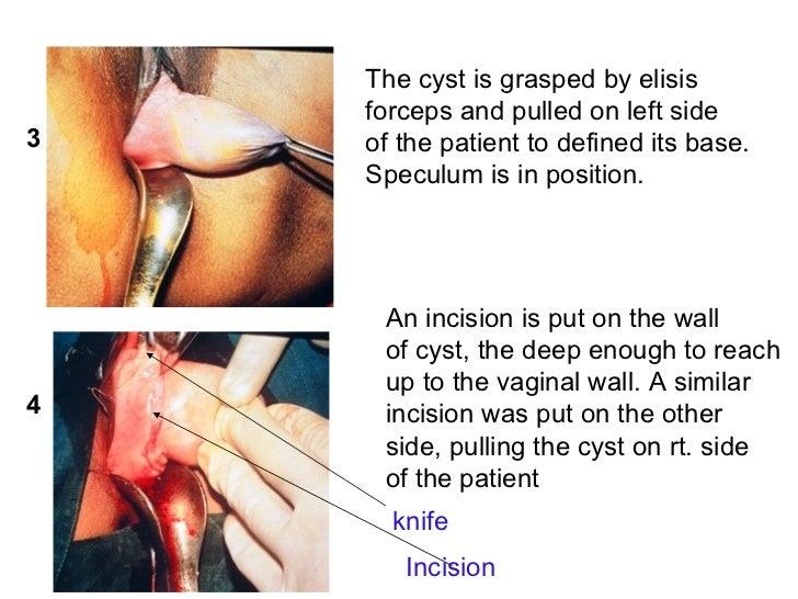 Vagina not deep enough
