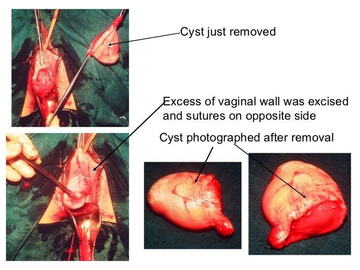 Surgery for vaginal cysts